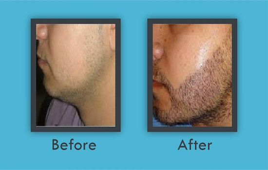 Best hair transplantation in panipat